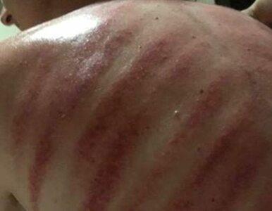 """Turysta nieopatrznie zgodził się na """"masaż czerwonego smoka"""". Oto efekty"""