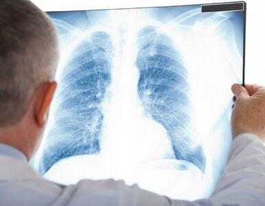 Drobnokomórkowy rak płuca: liczy się czas